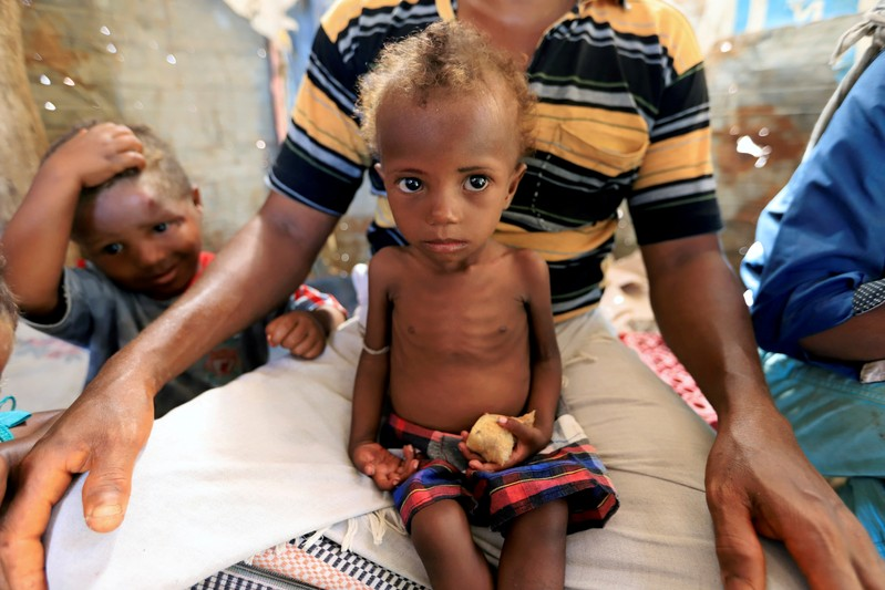 FILE PHOTO: Hanaa Ahmad Ali Bahr, a malnourished girl, sits on her father's lap in a shanty town in Hodeidah, Yemen