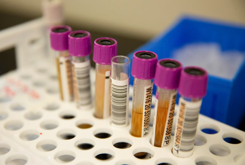 FILE PHOTO: Plasma samples at Bloodworks in Renton